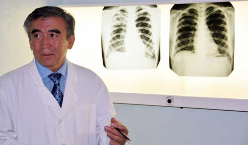 Dr. Shakimurat Ismoilov displays his patient's X-rays.