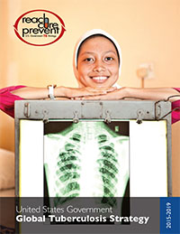 A young woman standing behind a chest x-ray
