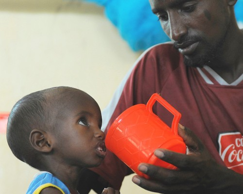 Aden, a 3-year-old Somali refugee recovering from severe malnutrition, is fed by his father at a stabilization center in Hagader