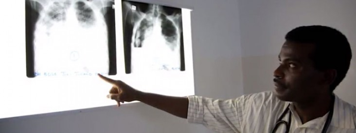 A doctor points to an x-ray of a person's chest.