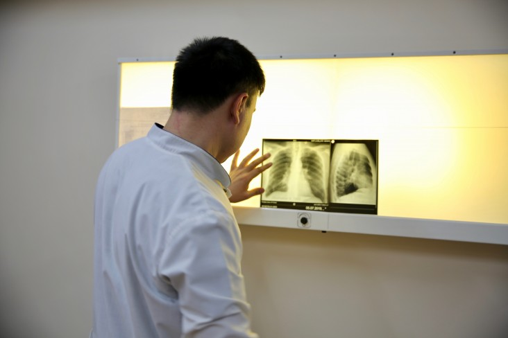 Dr. Amanzhan Abubakirov, a TB specialist, reviews a chest X-ray